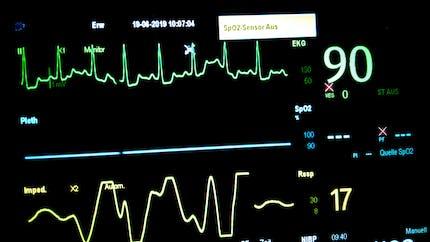 Tout savoir sur la tachycardie et les palpitations