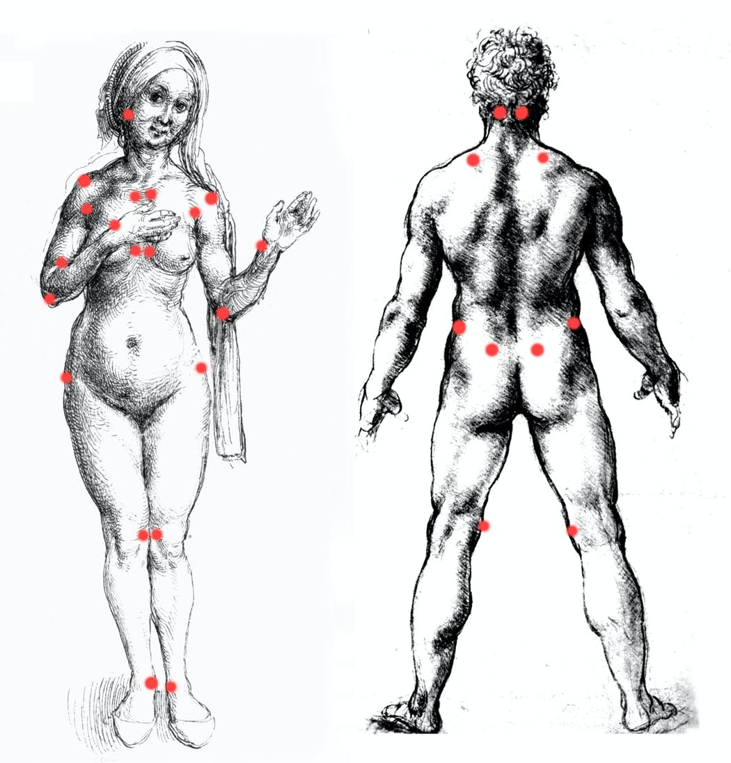 les localisations de la douleur dans la fibromyalgie