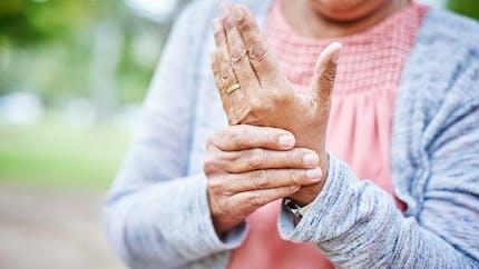 Arthrite : définition, symptômes, traitements