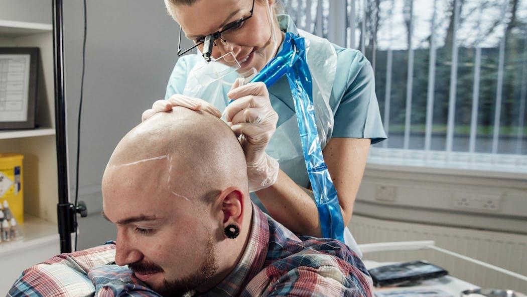 Le tatouage du cuir chevelu pour dissimuler une calvitie ou une pelade