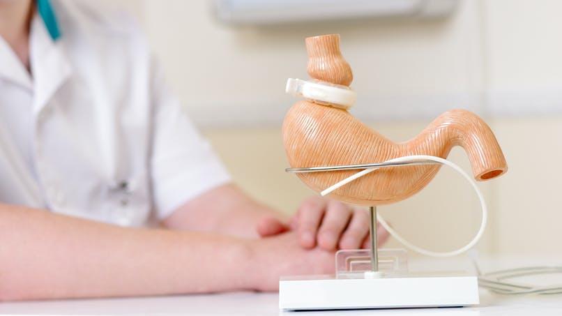 Chirurgie bariatrique : quand se faire opérer ? avec quelle technique ? quel suivi ?