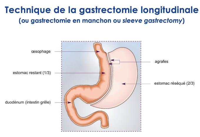 En quoi consiste la sleeve gastrectomie ?