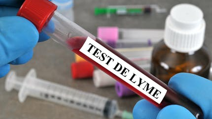 Tout savoir sur la maladie de Lyme