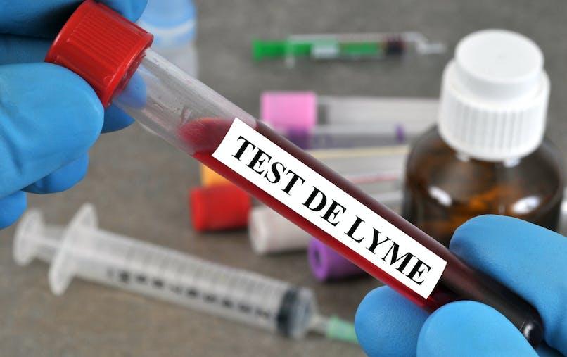 Maladie de Lyme - Borréliose : définition, symptômes, traitements