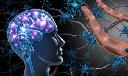 Sclérose en plaques : ce qu'il faut savoir sur cette maladie neurologique chronique