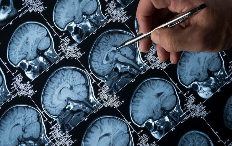 Tout savoir sur la maladie d'Alzheimer