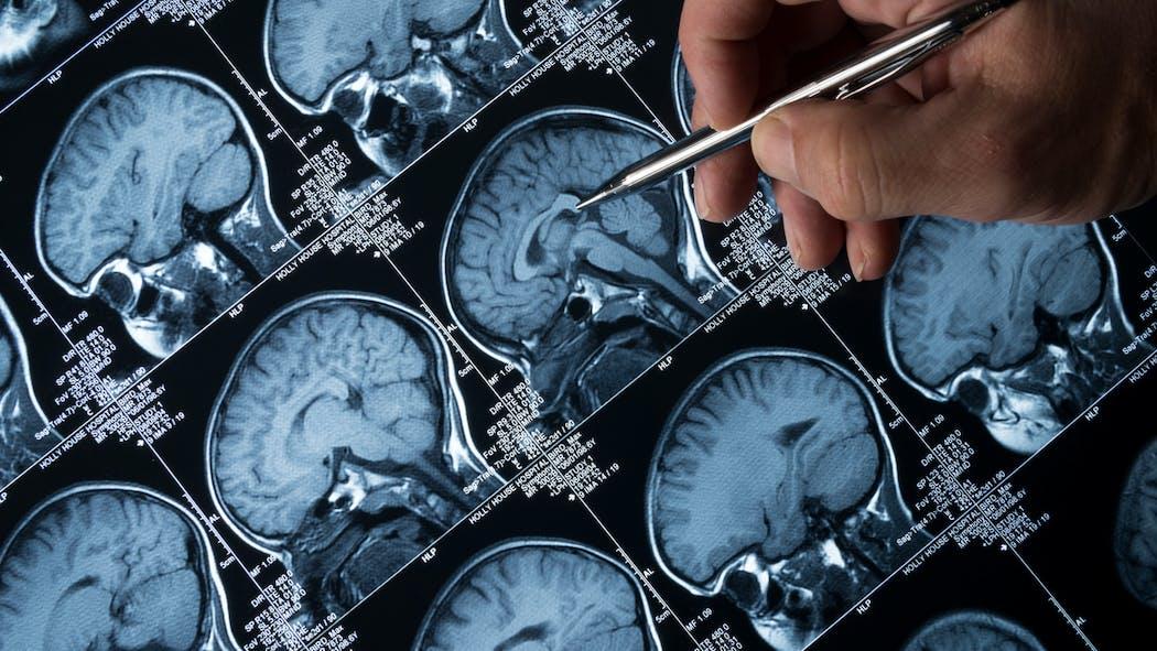 Alzheimer : tout savoir sur cette maladie neurodégénérative