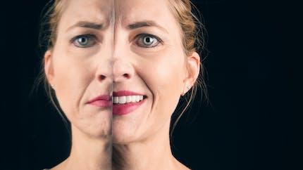 Bipolarité : qu'est-ce qu'une personne bipolaire ? quelle prise en charge ?