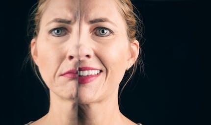 Qu'est-ce qu'une personne bipolaire ? Quelle prise en charge ?