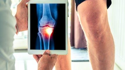 Tout savoir sur l'arthrose, le rhumatisme le plus fréquent