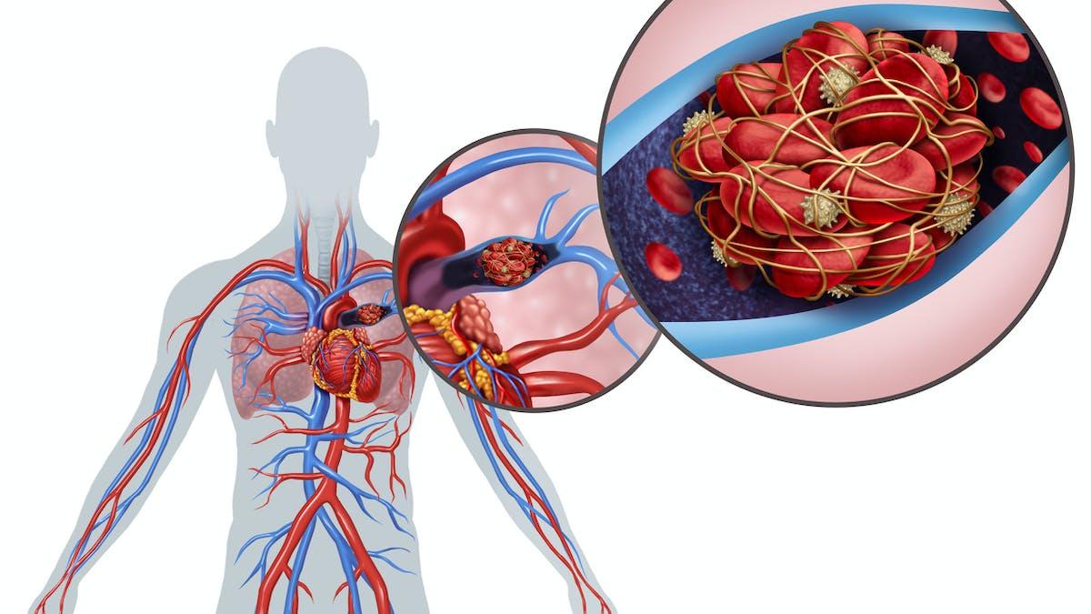 Tout savoir sur l'embolie pulmonaire