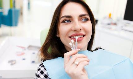 Facettes dentaires, quand y avoir recours ?