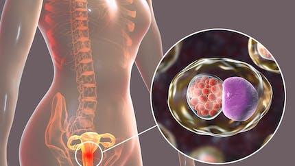 Tout savoir sur la chlamydiose, l'infection à chlamydia sexuellement transmissible