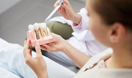 Implant dentaire : tout ce qu'il faut savoir avant l'opération