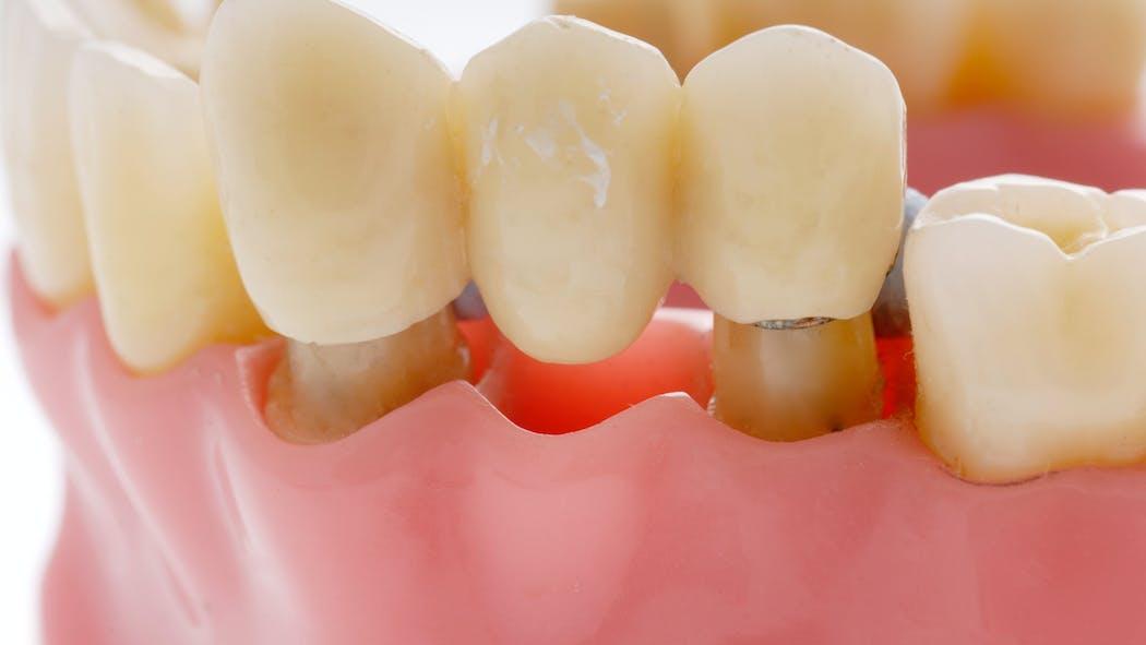 Bridges dentaires: comment préserver les dents saines?