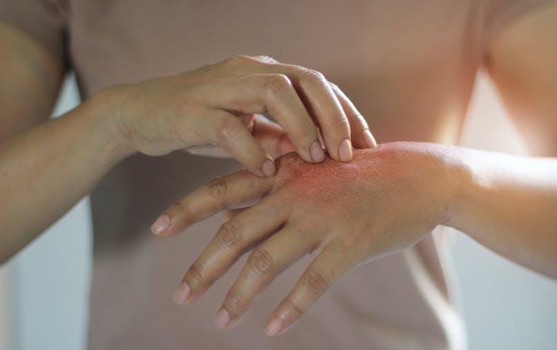 Dyshidrose : comment la traiter