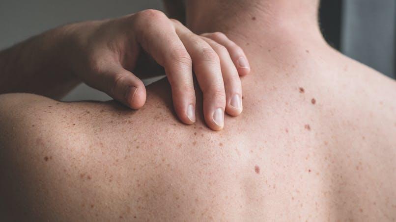 Tout savoir sur le cancer de la peau