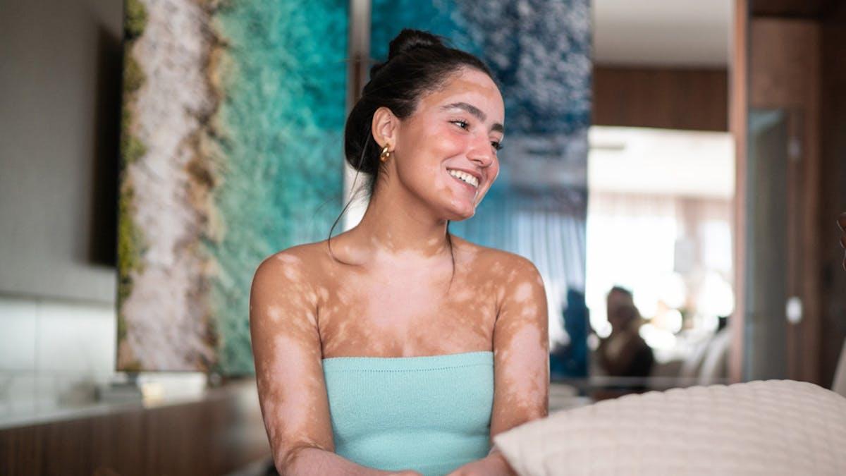 Tout savoir sur le vitiligo