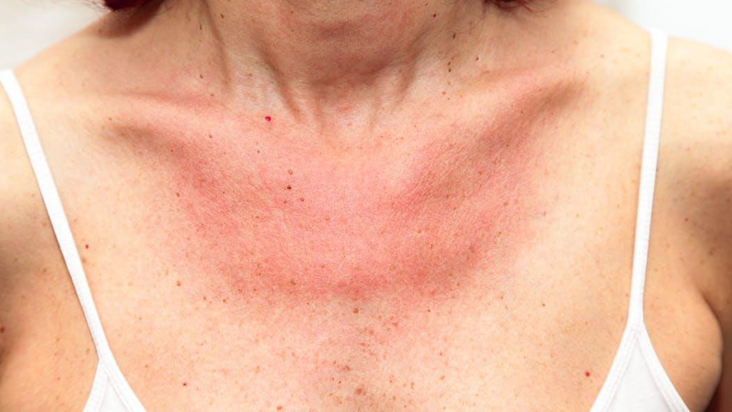 Lucite : tout savoir sur l'allergie au soleil