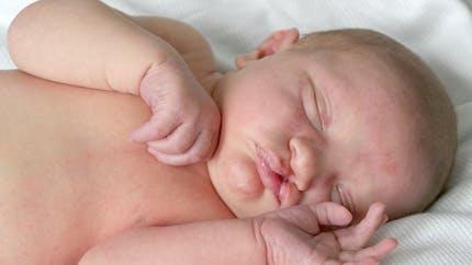 Tout savoir sur le bec-de-lièvre, une malformation congénitale fréquente du visage