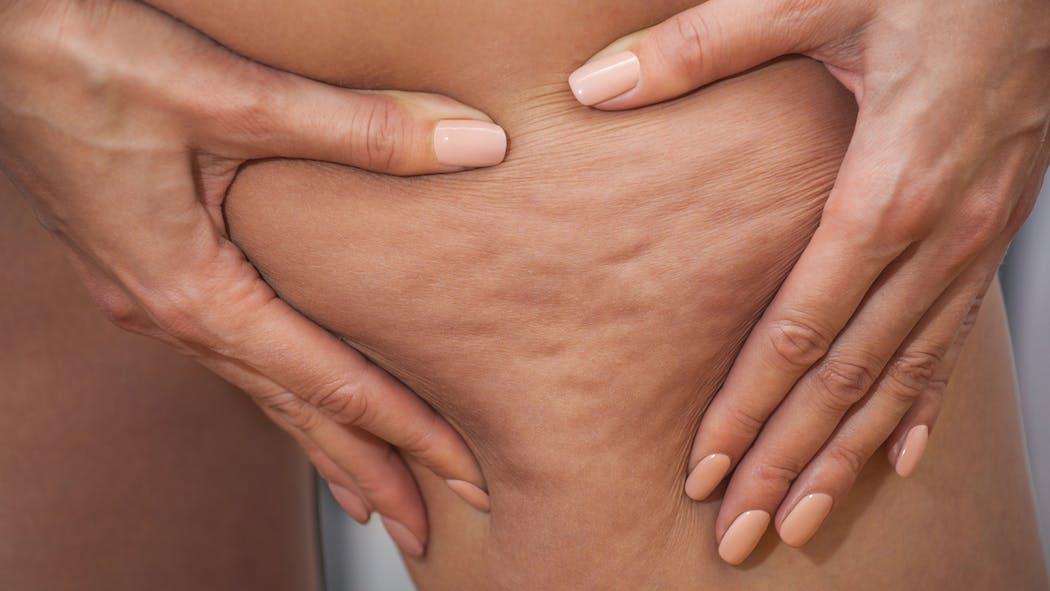 Test : quel est votre type de cellulite ?