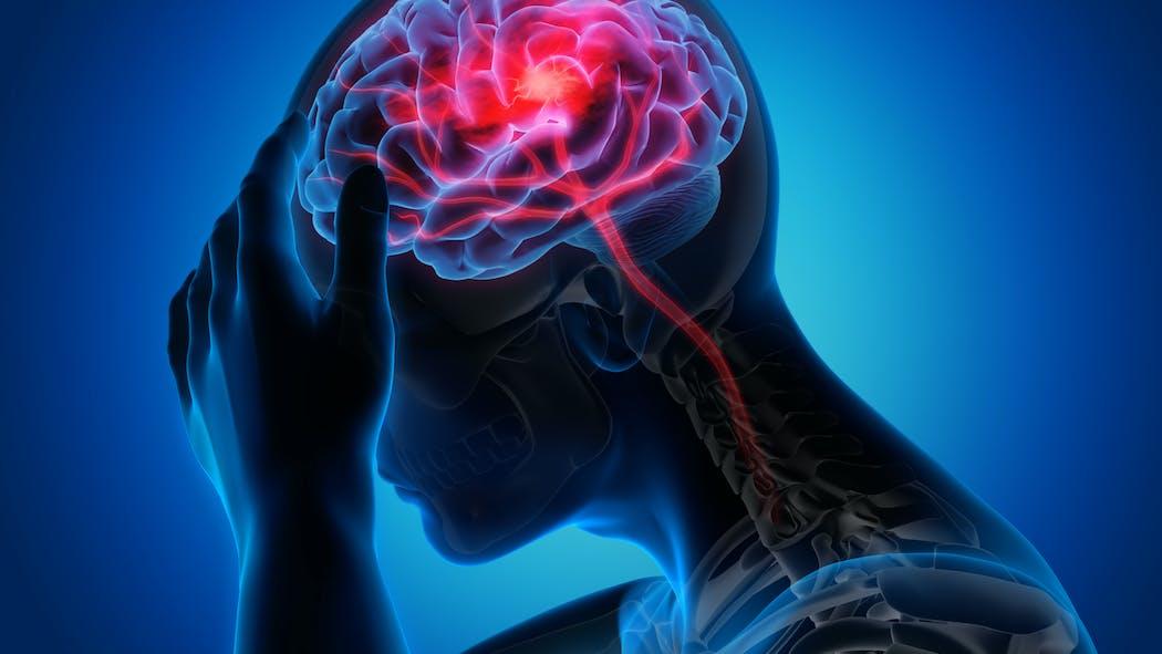 Tout savoir sur l'accident vasculaire cérébral (AVC)