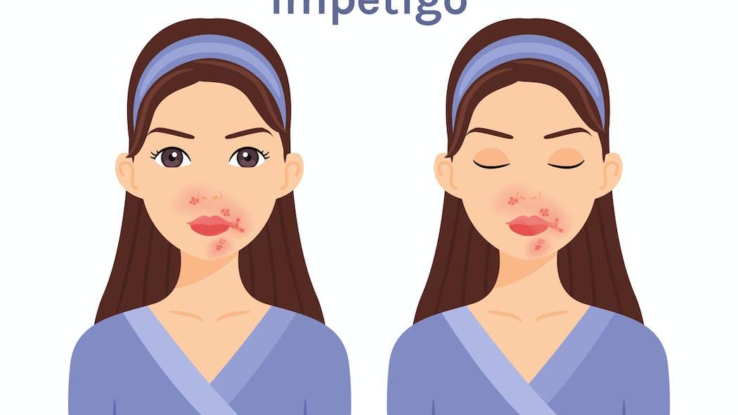 Tout savoir sur l'impétigo, une infection bactérienne cutanée