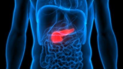 Cancer du pancréas : ce qu'il faut savoir