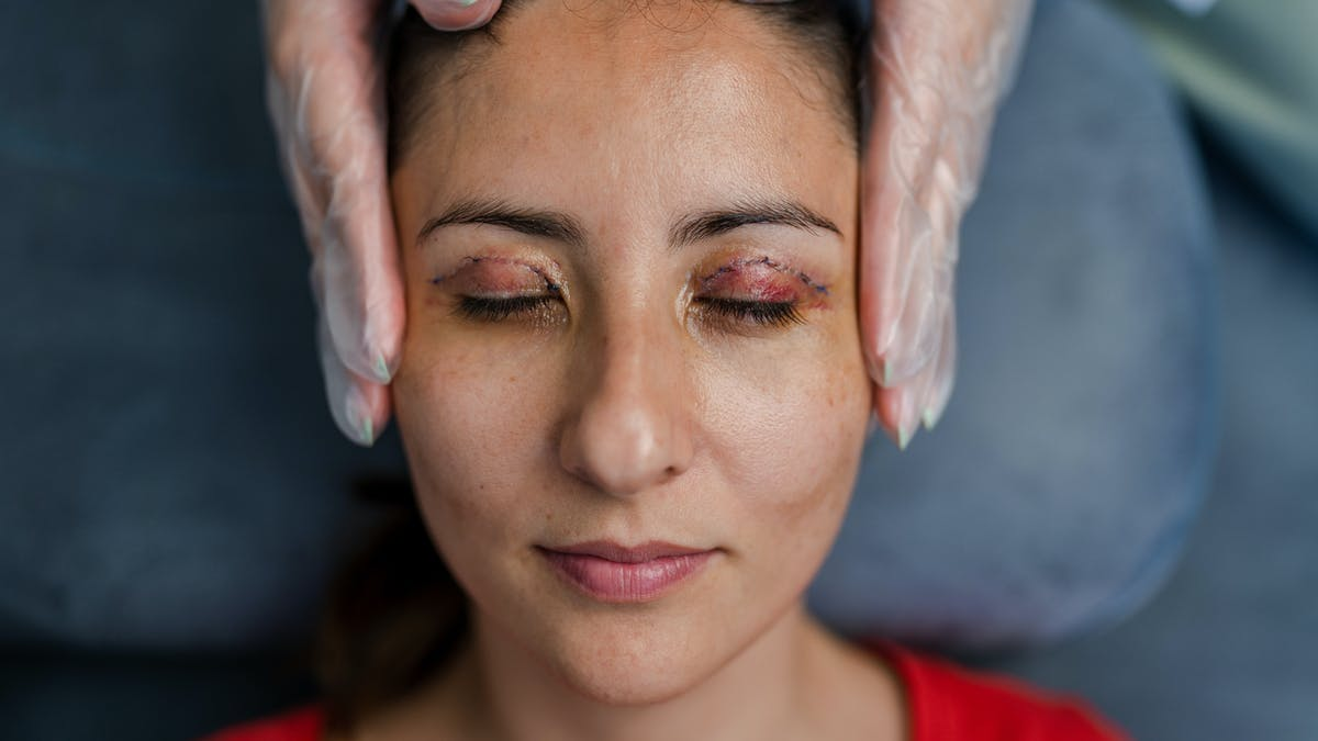 Femme alongée vient de subir une chirurgie des paupières (Blépharoplastie)
