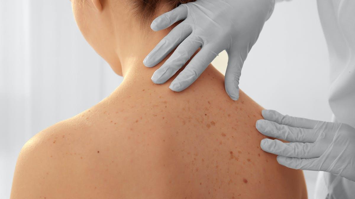 Examen de la peau et des grains de beauté prévention du cancer de la peau