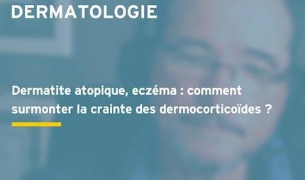 Corticophobie : comment surmonter la crainte des dermocorticoïdes ? (vidéo)