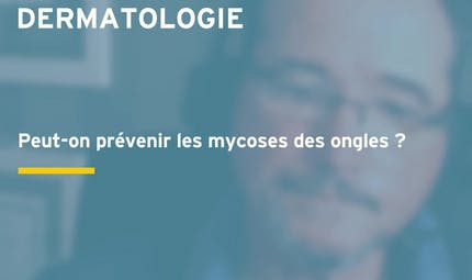Mycose de l'ongle (onychomycose) : comment la reconnaître et la traiter ?